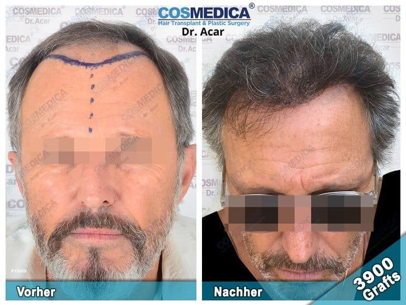 Ergebnis nach einer Haartransplantation mit 3900 Grafts