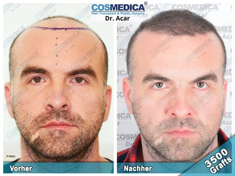 Ergebnis nach einer Haartransplantation mit 3500 Grafts