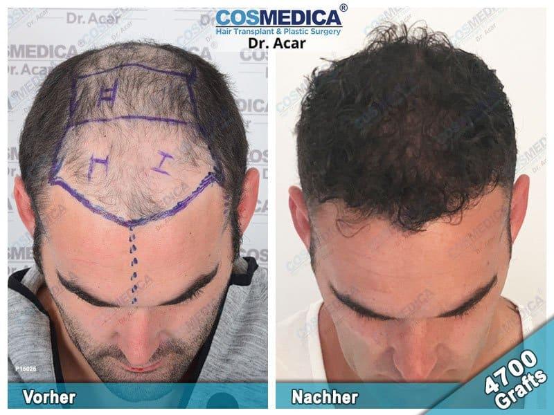 Ergebnis nach einer Haartransplantation mit 4700 Grafts