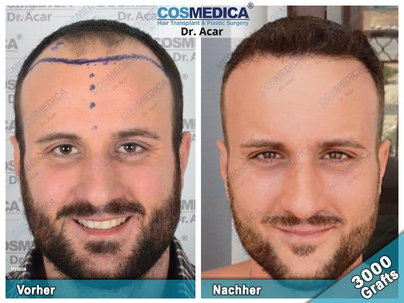 Ergebnis nach einer Haartransplantation mit 3000 Grafts