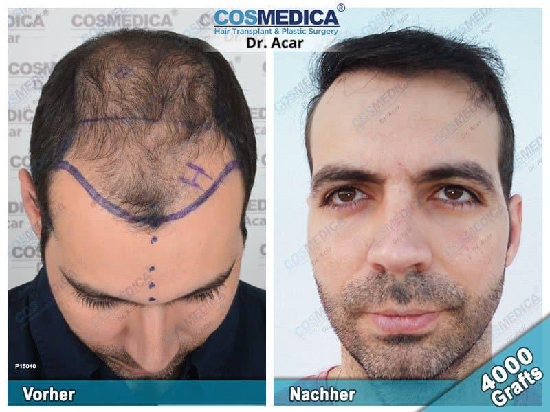 Ergebnis nach einer Haartransplantation mit 4000 Grafts