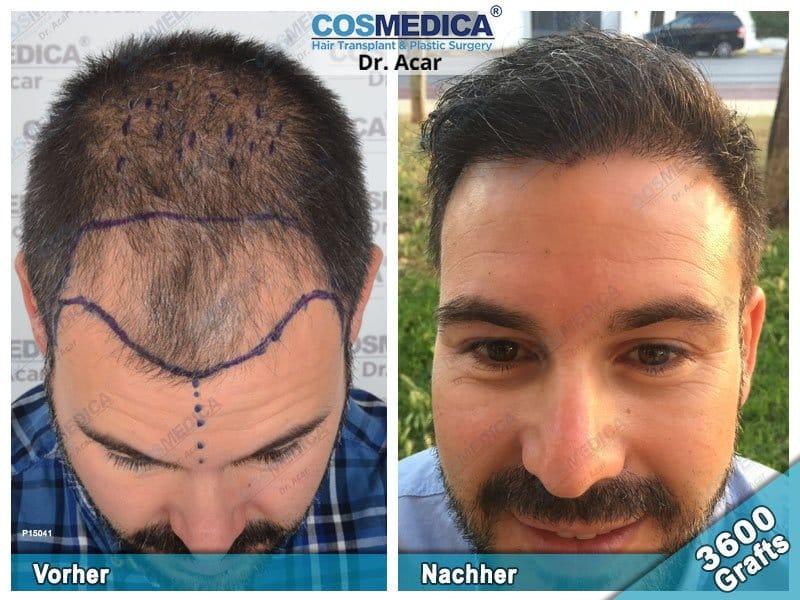 Ergebnis nach einer Haartransplantation mit 3600 Grafts