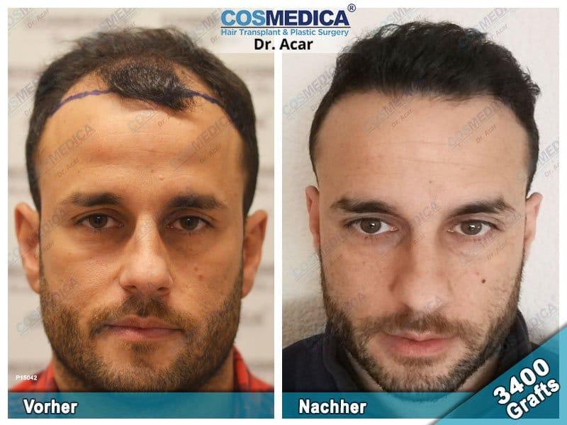 Ergebnis nach einer Haartransplantation mit 3400 Grafts