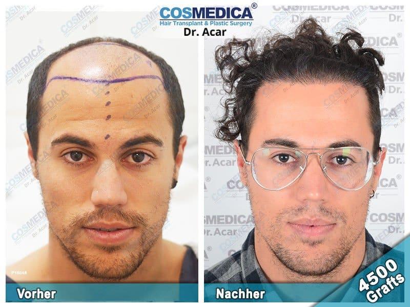 Ergebnis nach einer Haartransplantation mit 4500 Grafts