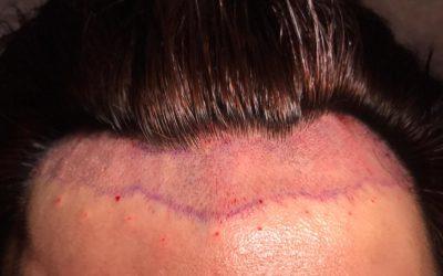 DHI Haartransplantation ohne Rasur