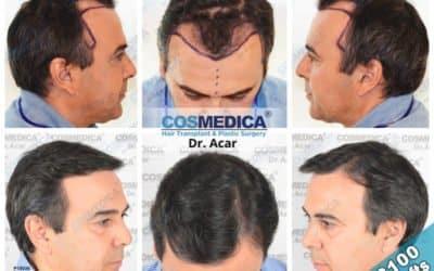DHI Haartransplantation vorher nachher
