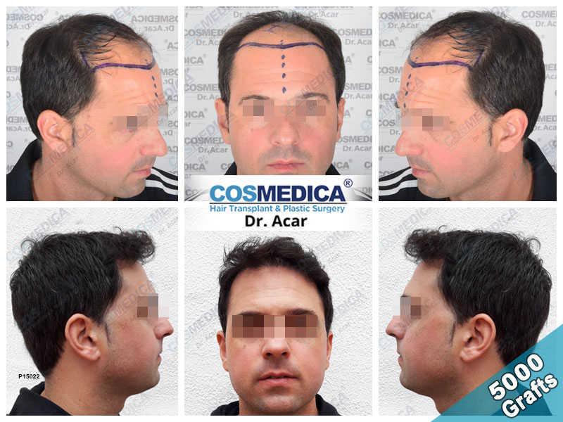 Haartransplantation Vorher Nachher Ergebnisse mit 5000 Grafts