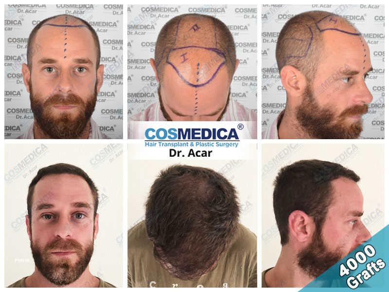 Haartransplantation Vorher Nachher Ergebnisse mit 4000 Grafts