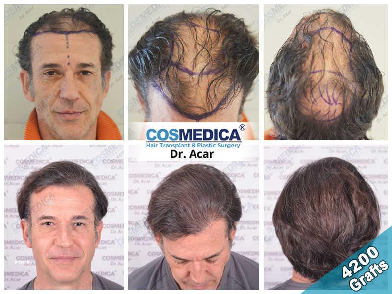 Haartransplantation Vorher Nachher Ergebnisse mit 4200 Grafts
