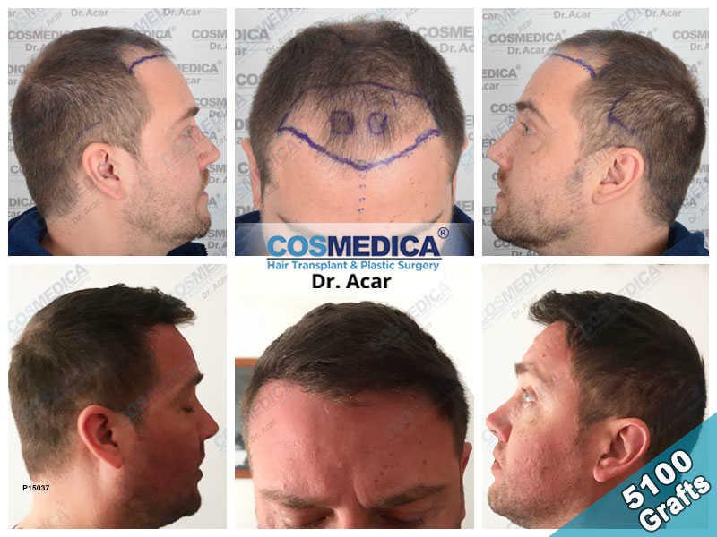 Haartransplantation Vorher Nachher Ergebnisse mit 5100 Grafts