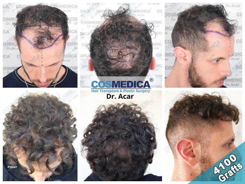 Haartransplantation Vorher Nachher Ergebnisse mit 4100 Grafts