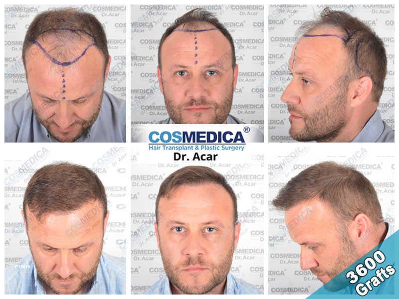 Haartransplantation Vorher Nachher Ergebnisse mit 3600 Grafts