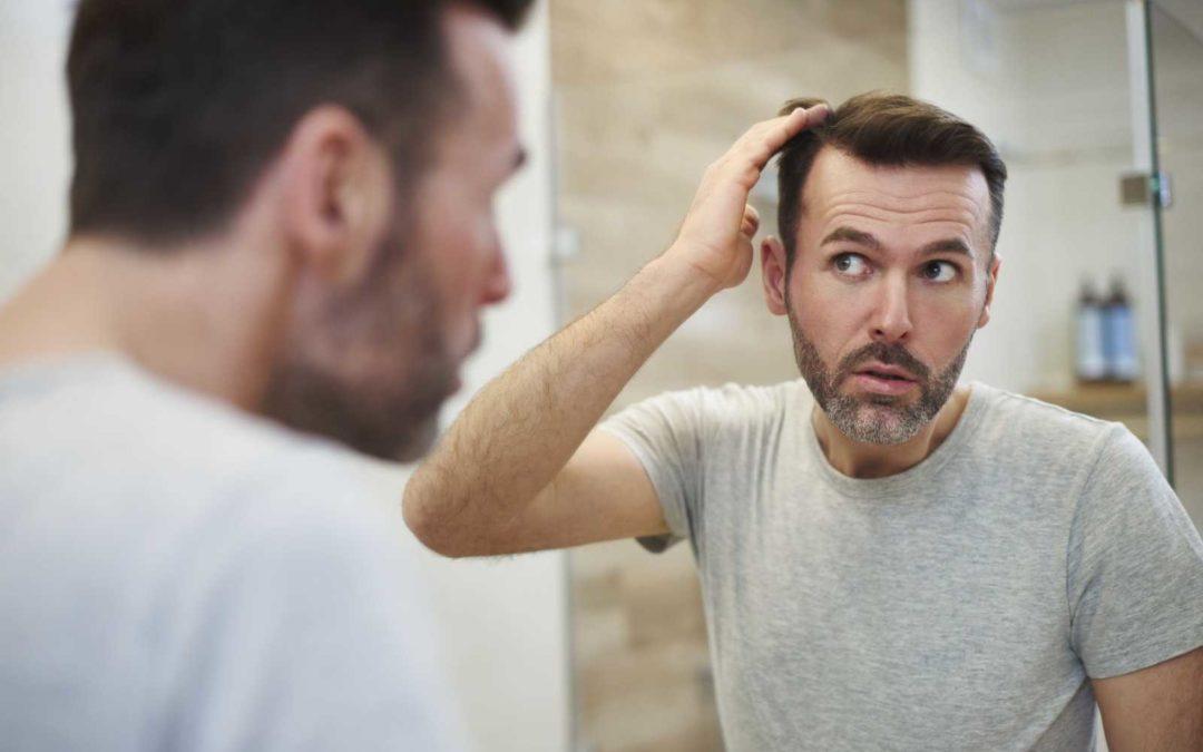 Haartransplantation bei Geheimratsecken