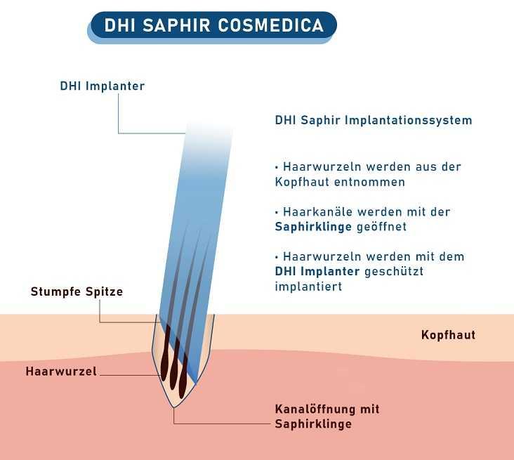 DHI Saphir Implantationssystem erklärt