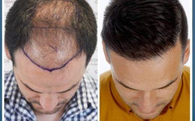 Haartransplantation Vorher Nachher zu beachten