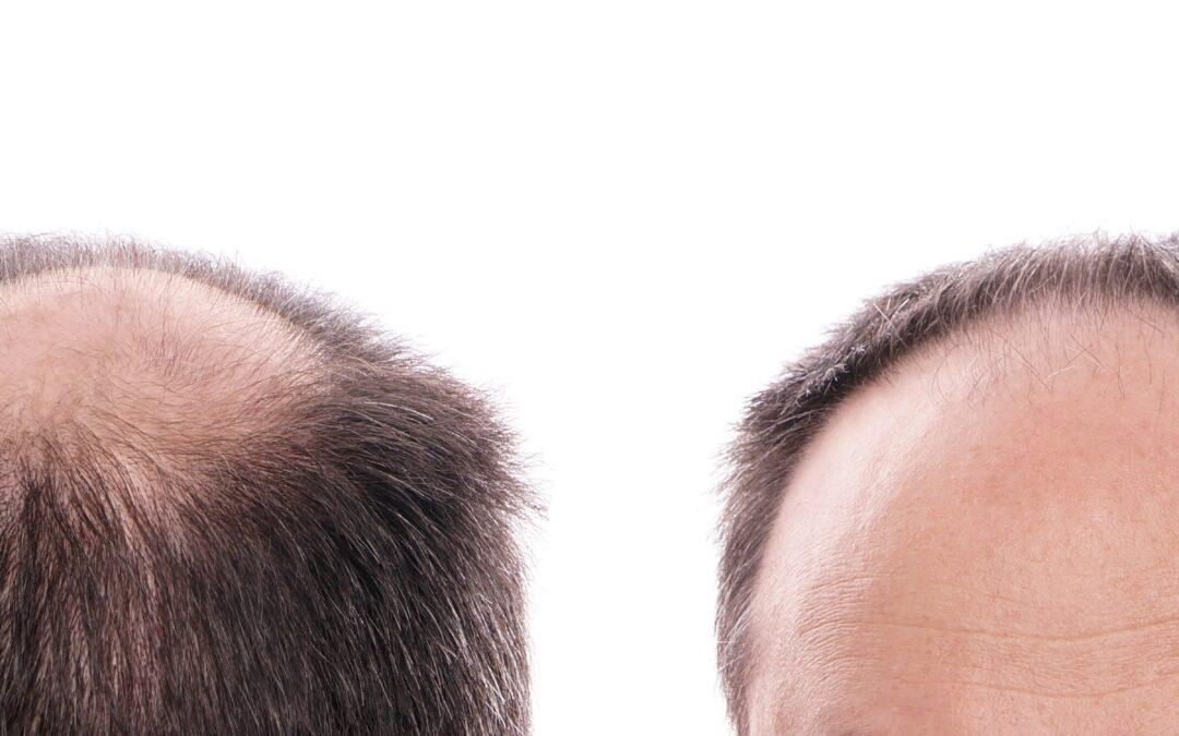 Haarausfall Durch Testosteron
