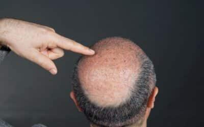 Glatze, auf der die transplantierten Haare zu sehen sind
