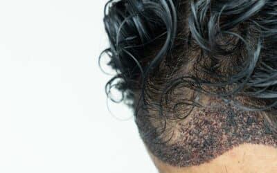 Lockenkopf mit vorbereiteten Stelle für die Haartransplantation