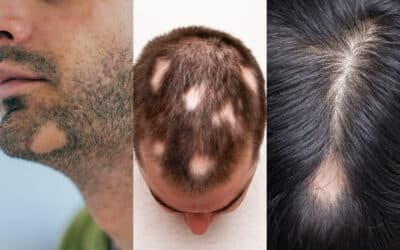 Zwei Köpfe, ein Bart mit kreisrundem Haarausfall