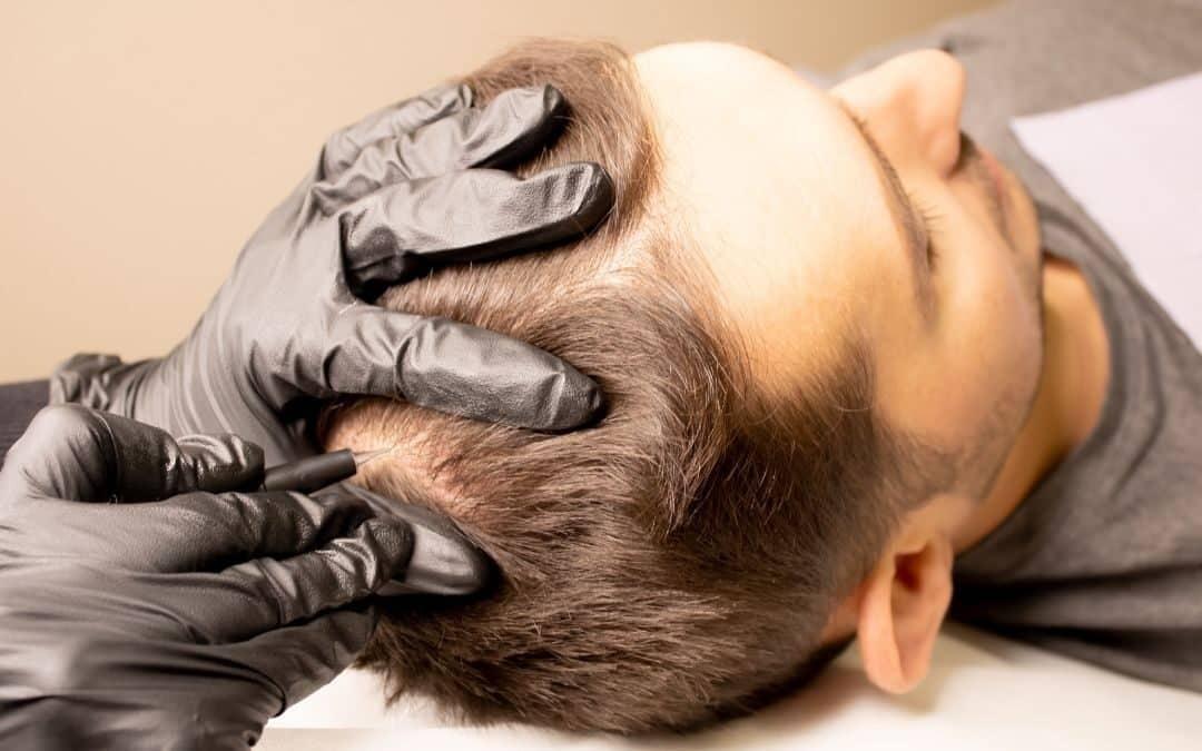 Haarpigmentierung nach einer Haartransplantation: Volleres Haar?
