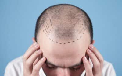Hat man Schmerzen während der Haartransplantation und danach