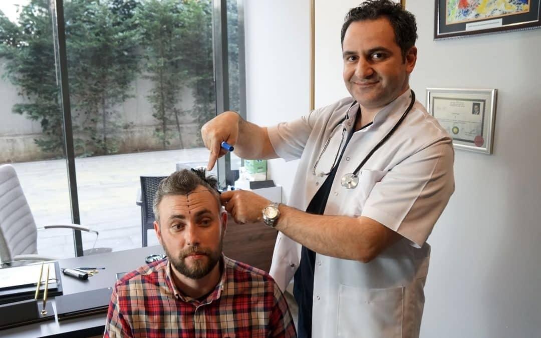 Natürliche Haarlinie – die hohe Kunst der Haartransplantation