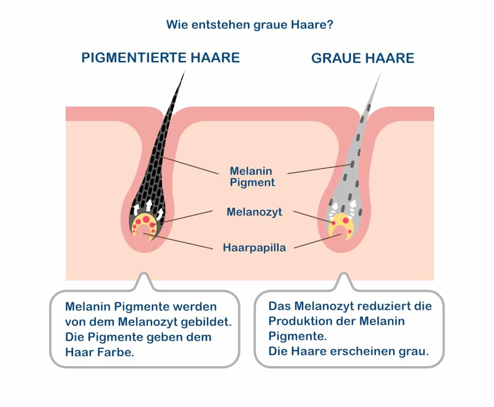 Haarausfall wegen Färben_ infografik_Wie entstehen graue Haare