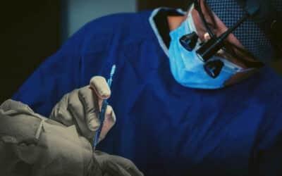 Beste Haatransplantationsmethode