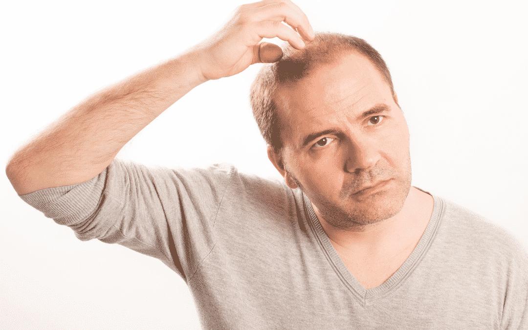 Ist eine Haartransplantation mit Fremdhaar möglich?