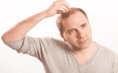 Haartransplantation mit Fremdhaar